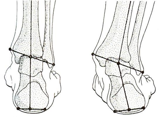 klenba nohy